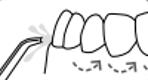 Munddusche