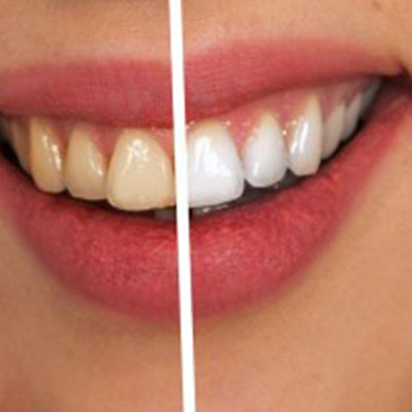Warum Werden Zähne Gelb